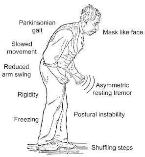 Symptoms of Parkinson diseases