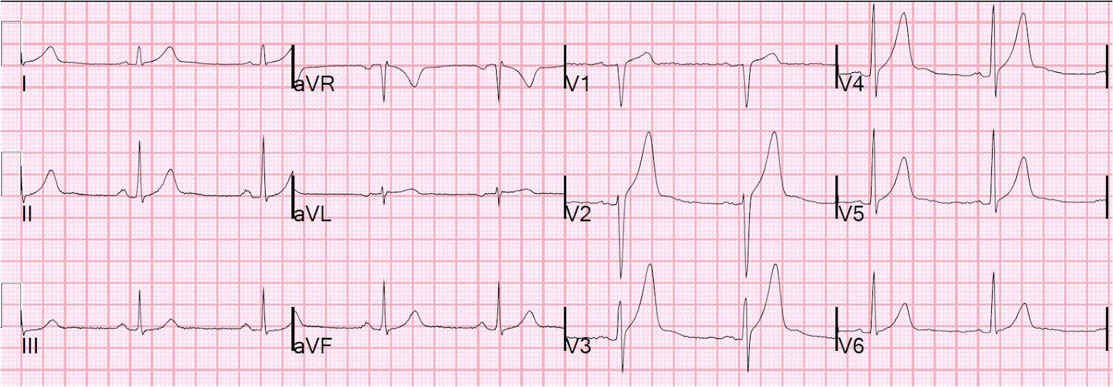 Dr. Smith's ECG Blog: Anterior ST elevation with large broad