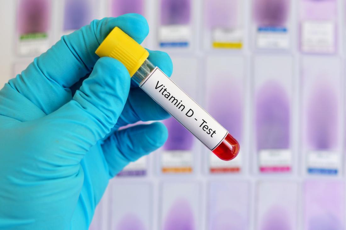 testing of vitamin D