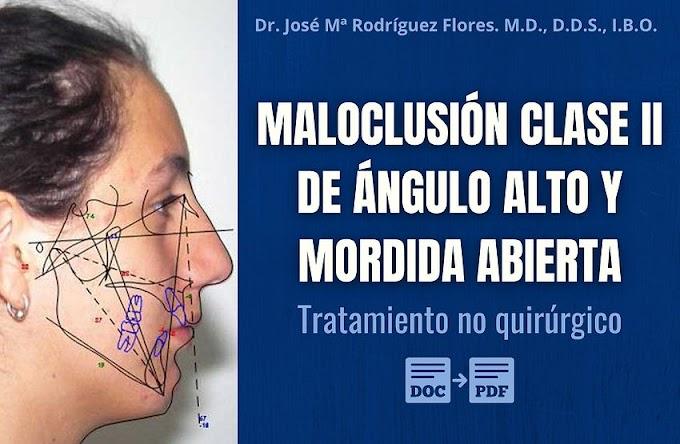 Tratamiento no quirúrgico de la Maloclusión Clase II de ángulo alto y mordida abierta