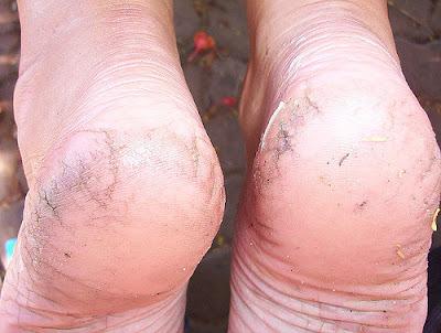 फटी एड़ियो(Cracked heels) का इलाज