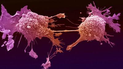 مرض-السرطان