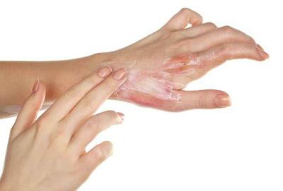 7 Jenis Penyakit Pada Kulit Yang Perlu Diketahui