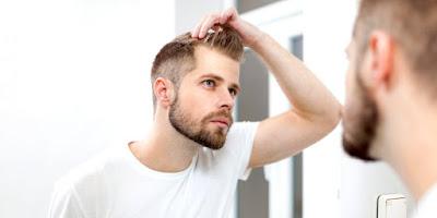 أسباب تساقط الشعر عند الرجال في سن مبكر