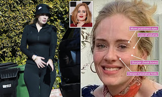 adele w eight loss surgery