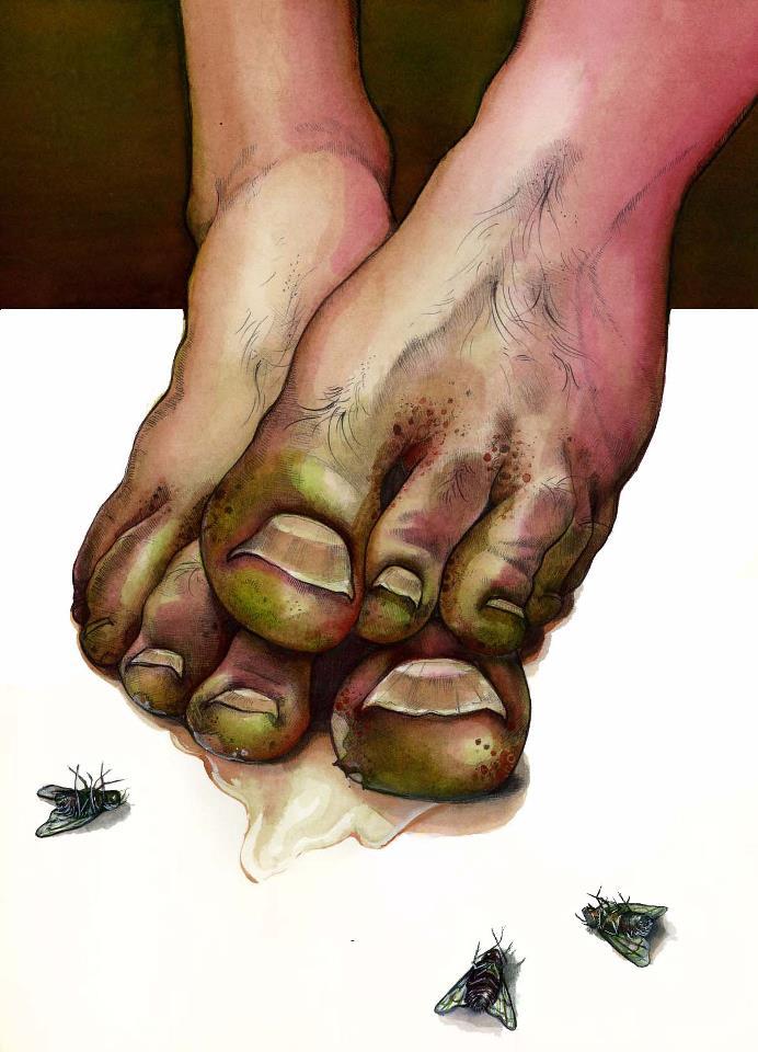 Stinky Feet 95