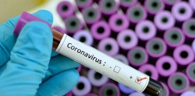 Lemah Tangani Pandemi Covid-19, Pengamat: Pemerintah Pusat Harus Sadar Diri