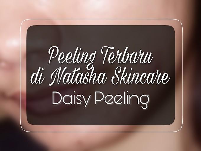 Peeling Terbaru di Natasha Skincare - Daisy Peeling