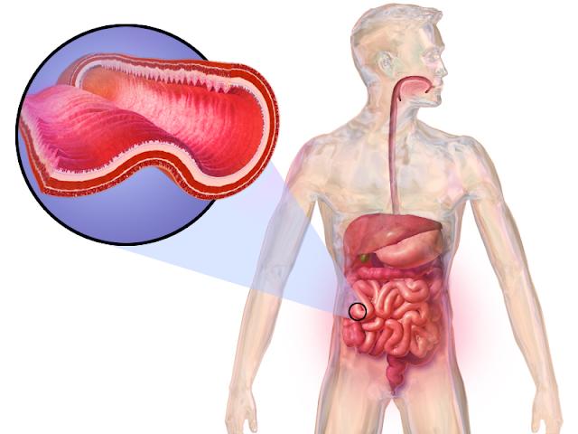 معلومات حول مرض كرون