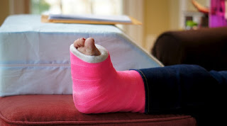 One Of Your Legs Broken And Cemented? What Should Be Done At Home?