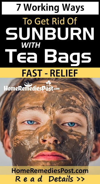 tea bags for sunburn relief, Home Remedies For Sunburn, how to treat sunburn, how to get rid of sunburn