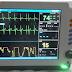 Patient Monitor Murah lebih mengasyikkan dengan Monitor Panel datar