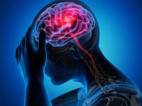 Yuk Cari Tahu Lebih Dalam Kegunaan dan Macam-macam Terapi Pasca Stroke