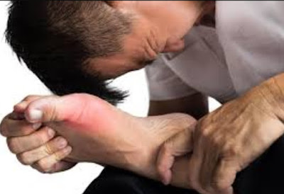 GOUT Arthritis and Diet