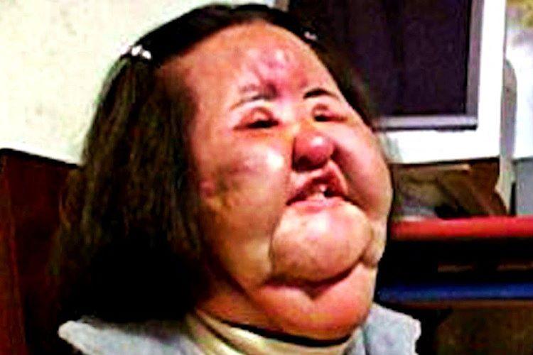 Hang Mioku yüzüne yıllarca bakkaldan aldığı yemek yağını enjekte ettiği için tanınmaz hale geldi.