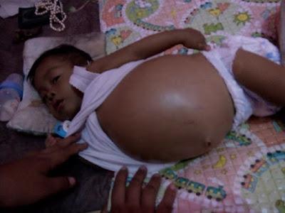 Rayhan Bayi Penderita Atresia Bilier Lampung Butuh Uluran Tangan Kita
