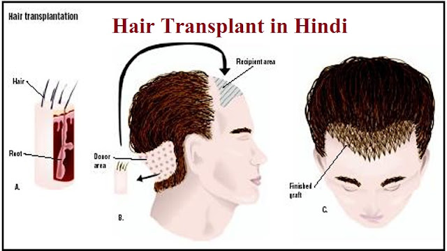 hair transplant kya hai, kaise kiya jata hai or kitne prakaar ka hota hai, fue hair transplant in hindi, fut hair transplant in hindi, hair weaving in hindi