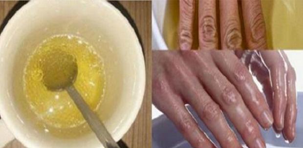 Asam Urat Bisa Sembuh dengan Merendam Tangan di Cuka Apel