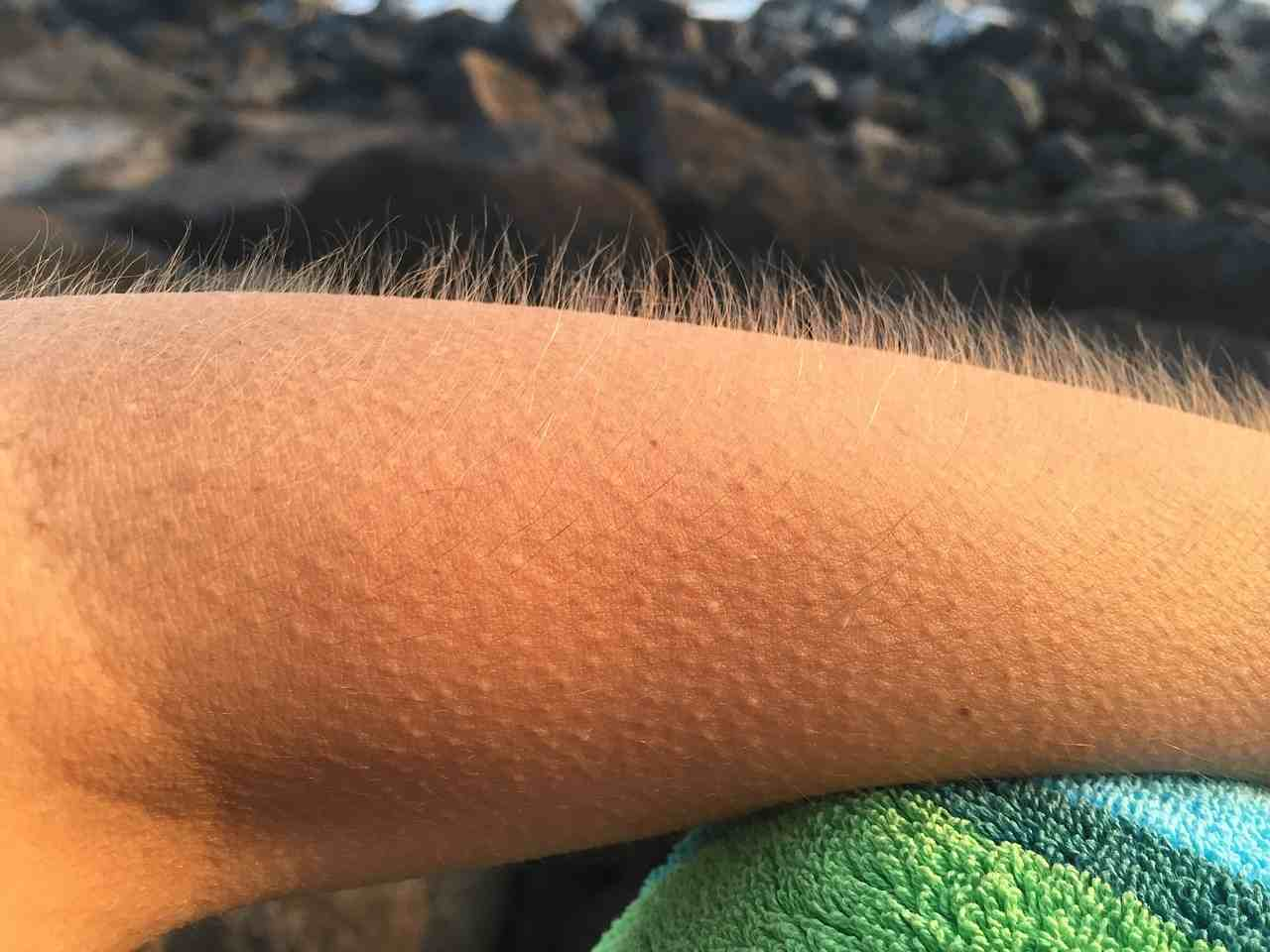 goosebumps-meaning-in-hindi