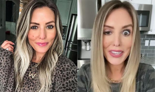 Блогерша превратилась в городскую сумасшедшую, когда укол ботокса изуродовал её лицо — видео