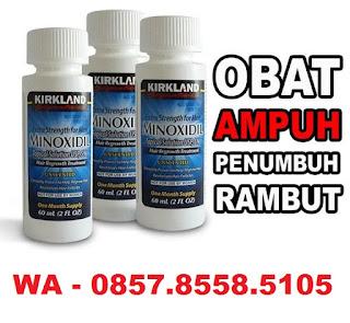Jual Minoxidil Kirkland Bandung 0857.8558.5105