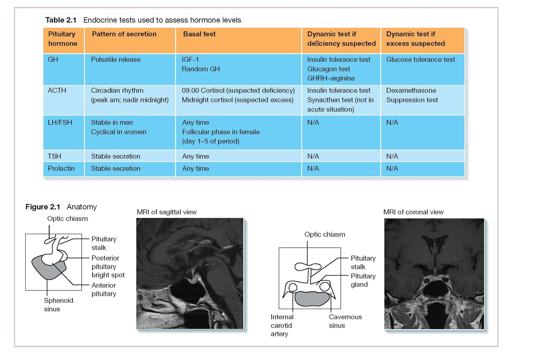 The Hypothalamic Pituitary Axis 2 And Its Assessment, Growth hormone, ACTH, Gonadotrophins (FSH and LH), TSH, Prolactin