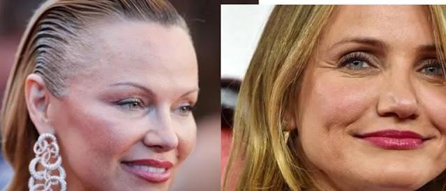 Celebrities Regret Having Had Plastic Surgery