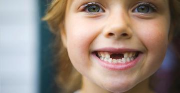 Kebiasaan Buruk Anak yang Bisa Membuat Karies Gigi