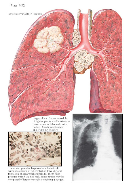 LARGE CELL CARCINOMAS OF THE LUNG