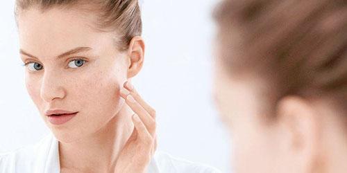 ¿Qué causa los poros abiertos?