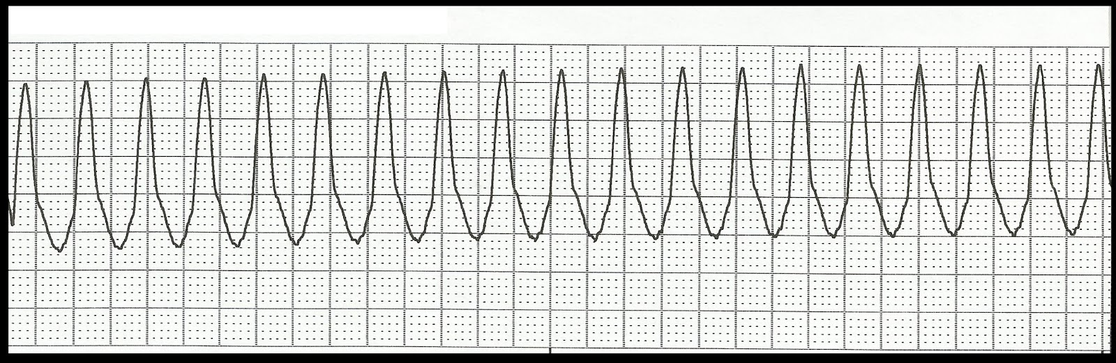 Old Fashioned image within ekg practice strips printable