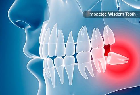 Cabut Gigi Bungsu Dengan Nyaman di J•Smile Dental