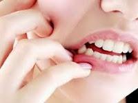 Kamu Sakit Gigi ? Cobalah Obat Sakit Gigi Tradisional dan Obat di Apotik Paling Ampuh Berikut ini!