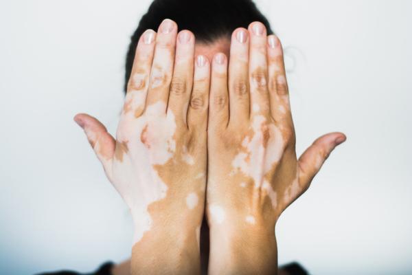 विटिलिगो या सफ़ेद दाग के लिए घरेलू नुस्खे : Home remedies for Vitiligo