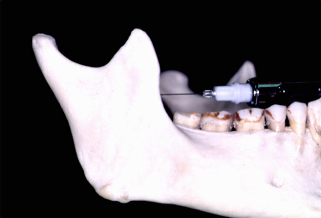dentalaka: Techniques of Mandibular Anesthesia including Inferior