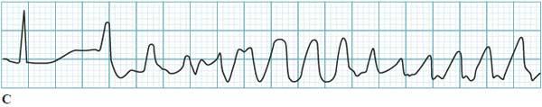 Torsades de pointes ECG