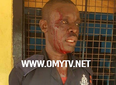 Tamale: Military Men Beat Up Police Officers, 6 Injured after Attack