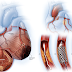 7 Unrevealed Silent Causes Of Heart Attacks