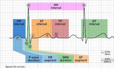 Gelombang EKG