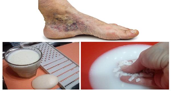 aplicatiile locale cu lapte de oaie fac adevarate minuni pentru pielea afectata de varice