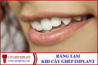 răng tạm được dùng sau khi cấy ghép implant -1