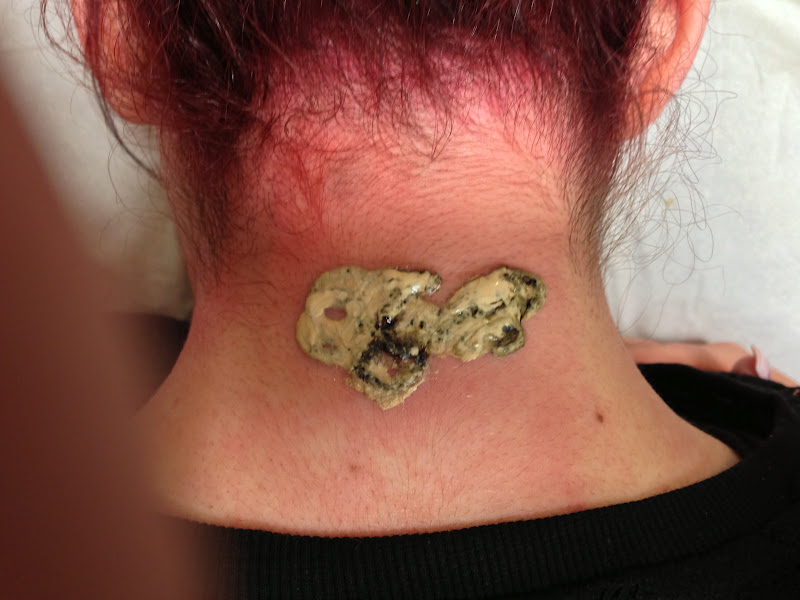 E Raze Non Laser Tattoo Removal Not Good If Your