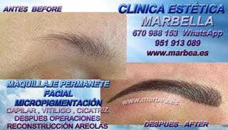 Micropigmentación Almeria Clínica Estética Micropigmentación Capilar Maquillaje Permanente Facial en Marbella y Almeria: Te proponemos la alta calidad de servicios con los mejores profesionales en micropigmentación capilar y maquillaje permanente