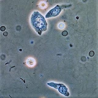 idrarda-transizyonel-hucre