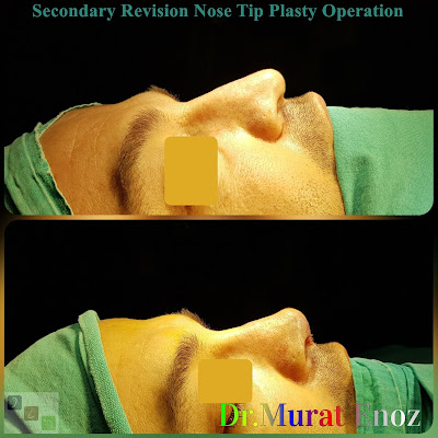 revision tipplasty in İstanbul,revision tipplasty in Turkey,revision tip plasty,revision tip plasty operation in Istanbul,Nose tip plasty,open technique tip plasty,