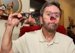 Viral! Pria dengan Lubang di Muka Karena Kanker Itu Sekarang Dapat Mencium Istrinya Setelah 25 Tahun