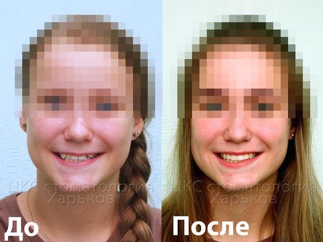 два фото лица пациента до и после ортодонтического лечения