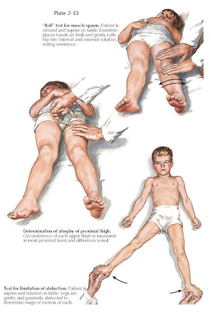 LEGG-CALVÉ-PERTHES DISEASE: PHYSICAL EXAMINATION (CONTINUED)
