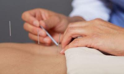 A acupuntura tem sido muito procurada por pessoas que buscam uma terapia alternativa e natural para aliviar a ansiedade e a depressão