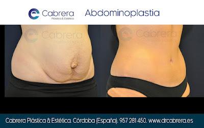 ombligo deformado abdominoplastia